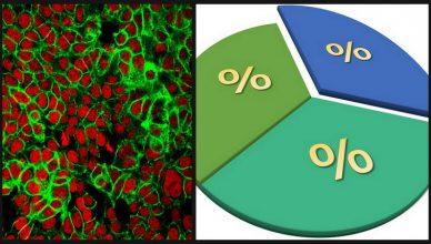 90% der Krebsfälle passieren nicht aus Zufall