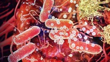 Die 18 besten probiotischen Bakterienstämme für den Darm