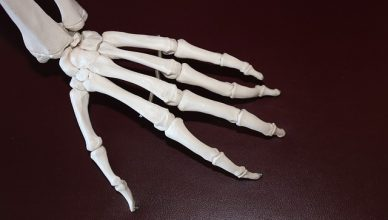 Arthritis – durch sanfte Behandlungsmethoden Schmerzen lindern