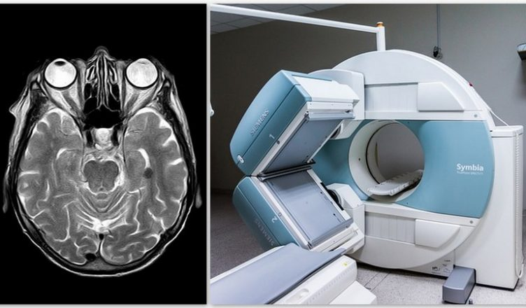Tiefenhirnstimulation erweist sich als effektive Therapie für MS-Patienten