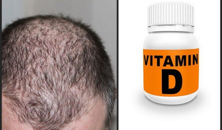 Kann ein Vitamin D-Mangel Haarausfall verursachen