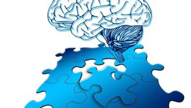 Kann Lupus das Demenzrisiko erhöhen?