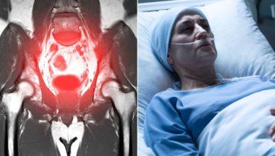 Ärztin stirbt an Krebs nachdem eine Operation Krebszellen in ihrem ganzen Körper verbreitet hat