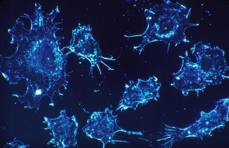 Mit Hilfe des Zellstoffwechsels gegen hartnäckige Tumore