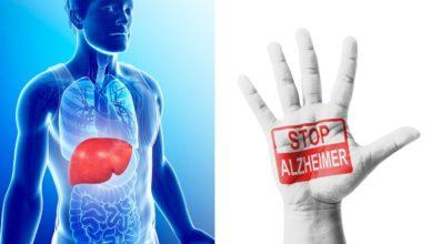 Wie die Gesundheit der Leber das Alzheimer-Risiko beeinflusst