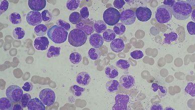 Leukämie und Lymphom: Gemeinsamkeiten und Unterschiede