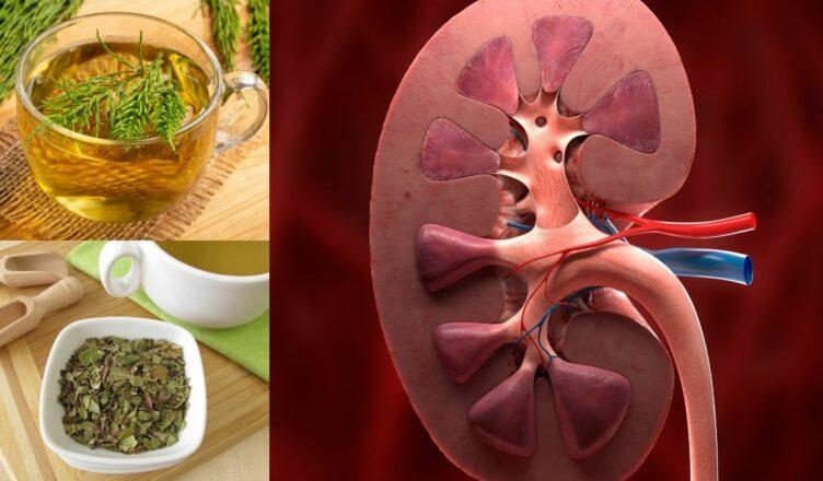 Die 10 besten Kräuter für eine Nierenreinigung