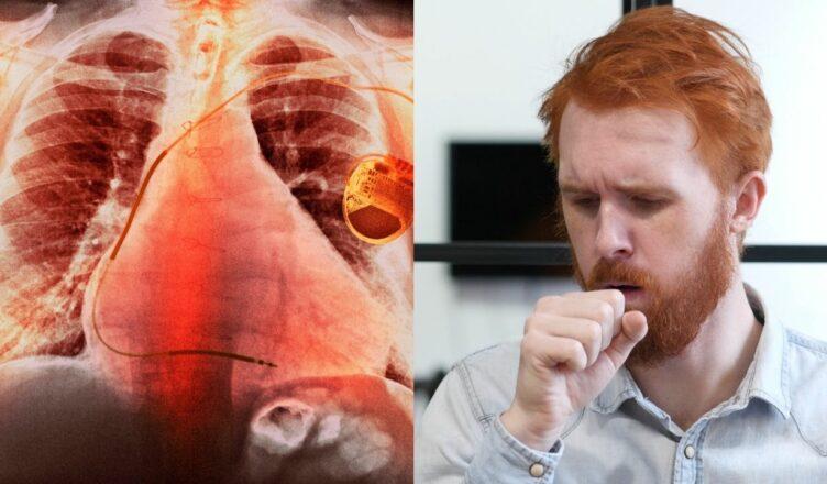 3 Frühe Anzeichen und Symptome von COPD