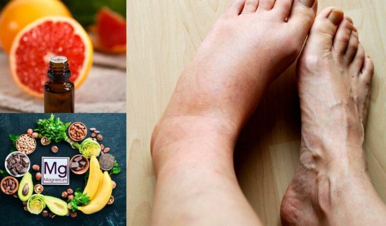 9 natürliche Mittel gegen geschwollene Füße und Beine